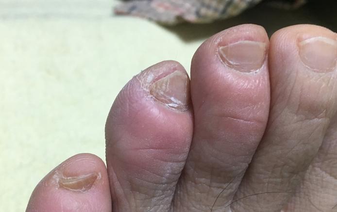 しもやけになった足の指